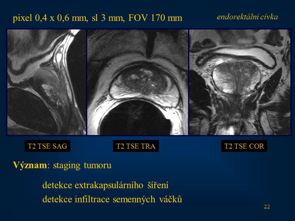 22 endorektální cívka T2 TSE SAGT2 TSE TRAT2 TSE COR Význam: staging tumoru detekce extrakapsulárního šíření detekce infiltrace semenných váčků pixel 0,4 x 0,6 mm, sl 3 mm, FOV 170 mm