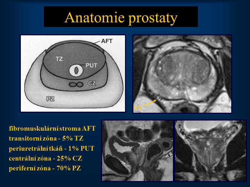 23 Anatomie prostaty fibromuskulární stroma AFT transitorní zóna - 5% TZ periuretrální tkáň - 1% PUT centrální zóna - 25% CZ periferní zóna - 70% PZ NV