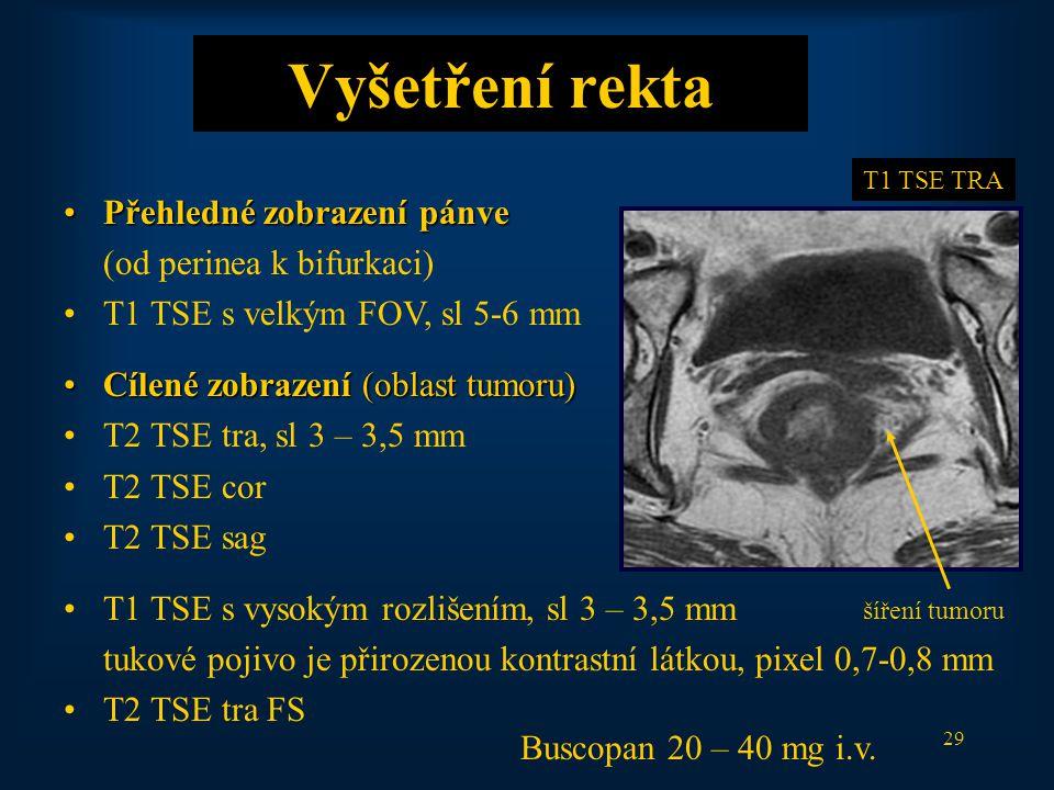 29 Vyšetření rekta Přehledné zobrazení pánvePřehledné zobrazení pánve (od perinea k bifurkaci) T1 TSE s velkým FOV, sl 5-6 mm Cílené zobrazení (oblast tumoru)Cílené zobrazení (oblast tumoru) T2 TSE tra, sl 3 – 3,5 mm T2 TSE cor T2 TSE sag T1 TSE s vysokým rozlišením, sl 3 – 3,5 mm tukové pojivo je přirozenou kontrastní látkou, pixel 0,7-0,8 mm T2 TSE tra FS šíření tumoru T1 TSE TRA Buscopan 20 – 40 mg i.v.