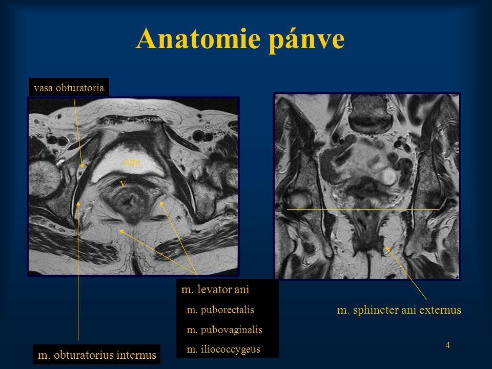 5 Anatomie pánve diafragma urogenitalediafragma pelvis fossa ischiadica (m.levator ani) corpus spongiosum penis crus penis sv p ischioanální prostor