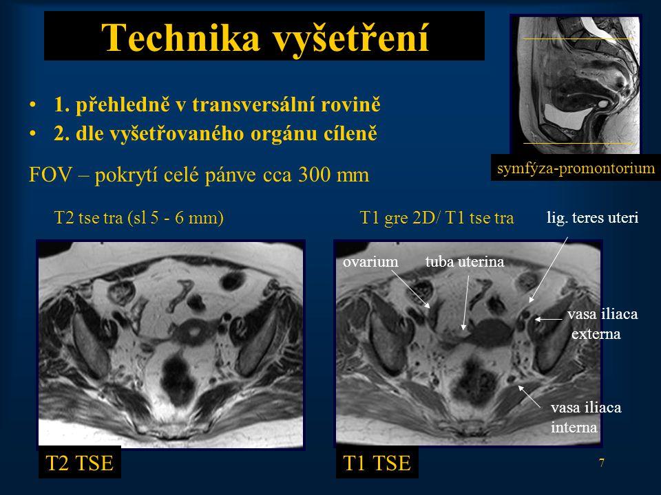 18 Zralý cystický teratom T1 TSET2 TSE T1 TSE FS