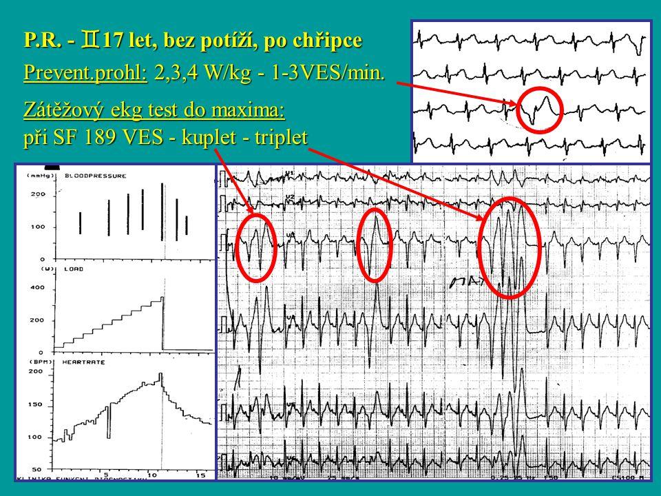 Liberec P.R. -  17 let, bez potíží, po chřipce Prevent.prohl: 2,3,4 W/kg - 1-3VES/min. Zátěžový ekg test do maxima: při SF 189 VES - kuplet - triplet