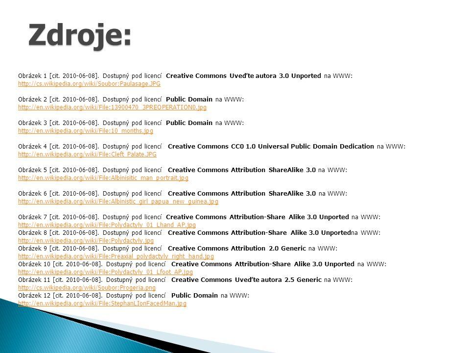 Obrázek 1 [cit. 2010-06-08]. Dostupný pod licencí Creative Commons Uveďte autora 3.0 Unported na WWW: http://cs.wikipedia.org/wiki/Soubor:Paulasage.JP