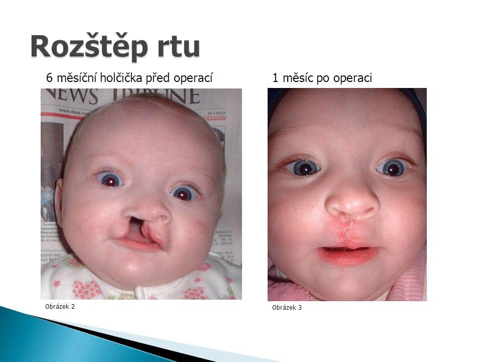 Obrázek 2 Obrázek 3 6 měsíční holčička před operací1 měsíc po operaci