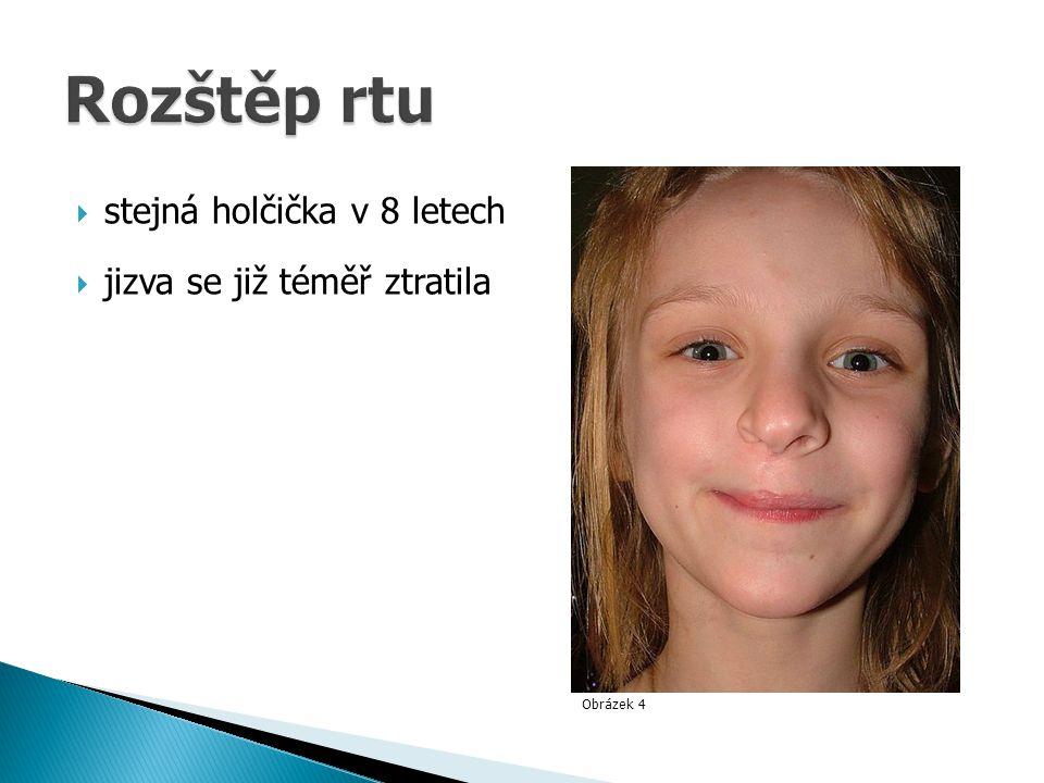 Obrázek 4  stejná holčička v 8 letech  jizva se již téměř ztratila