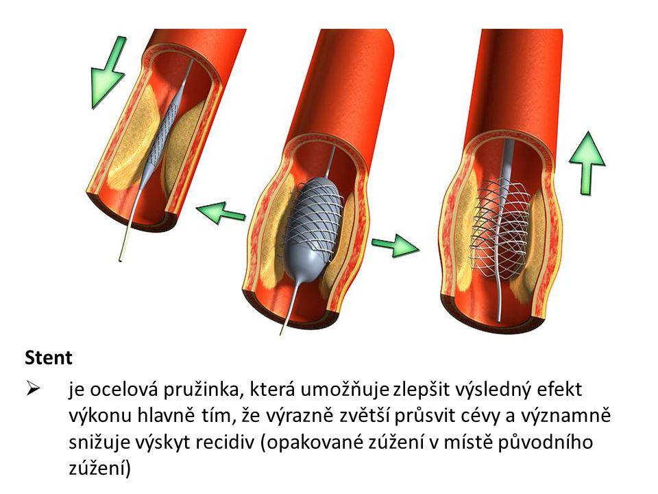 Stent  je ocelová pružinka, která umožňuje zlepšit výsledný efekt výkonu hlavně tím, že výrazně zvětší průsvit cévy a významně snižuje výskyt recidiv (opakované zúžení v místě původního zúžení)