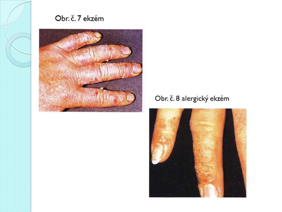 Obr. č. 7 ekzém Obr. č. 8 alergický ekzém