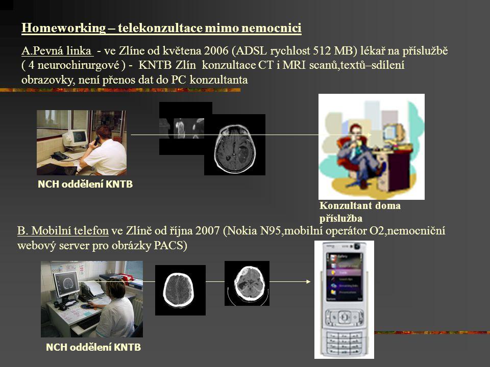 Homeworking – telekonzultace mimo nemocnici A.Pevná linka - ve Zlíne od květena 2006 (ADSL rychlost 512 MB) lékař na příslužbě ( 4 neurochirurgové ) - KNTB Zlín konzultace CT i MRI scanů,textů–sdílení obrazovky, není přenos dat do PC konzultanta NCH oddělení KNTB Konzultant doma příslužba B.