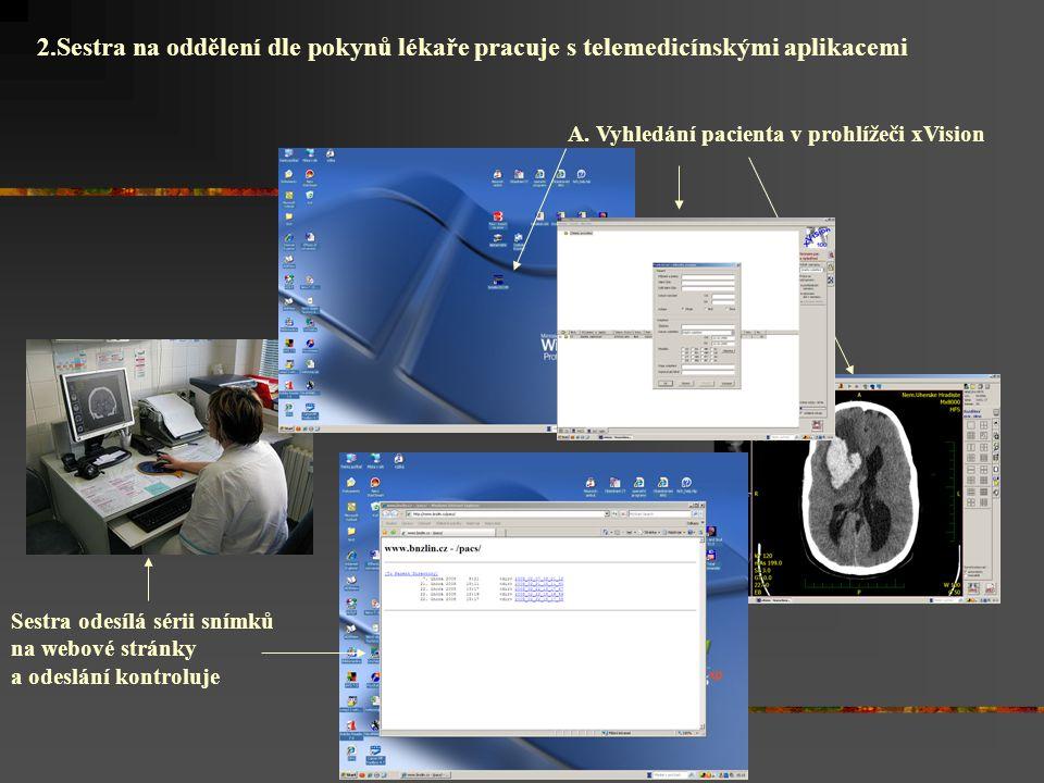 2.Sestra na oddělení dle pokynů lékaře pracuje s telemedicínskými aplikacemi A. Vyhledání pacienta v prohlížeči xVision Sestra odesílá sérii snímků na