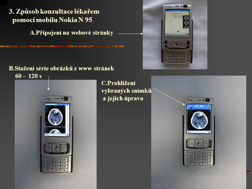 3. Způsob konzultace lékařem pomocí mobilu Nokia N 95 A.Připojení na webové stránky B.Stažení série obrázků z www stránek 60 - 120 s C.Prohlížení vybr
