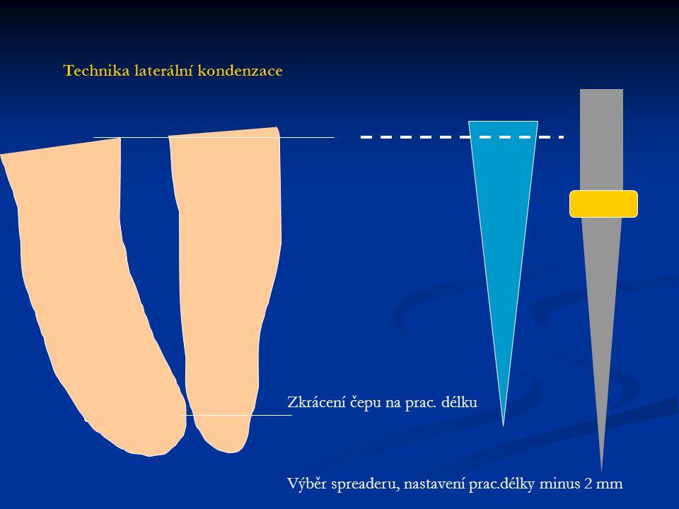 Zkrácení čepu na prac. délku Výběr spreaderu, nastavení prac.délky minus 2 mm Technika laterální kondenzace