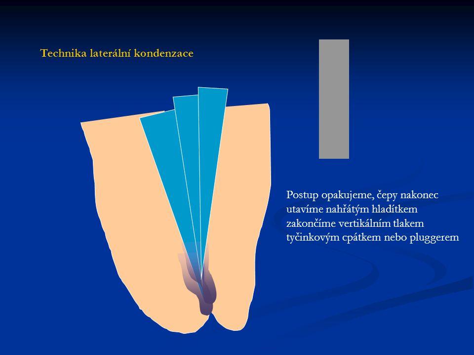 Postup opakujeme, čepy nakonec utavíme nahřátým hladítkem zakončíme vertikálním tlakem tyčinkovým cpátkem nebo pluggerem Technika laterální kondenzace