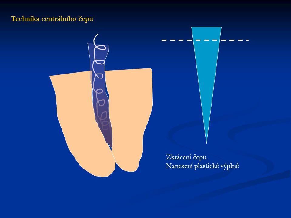 Aplikace čepu do plastické výplně Technika centrálního čepu