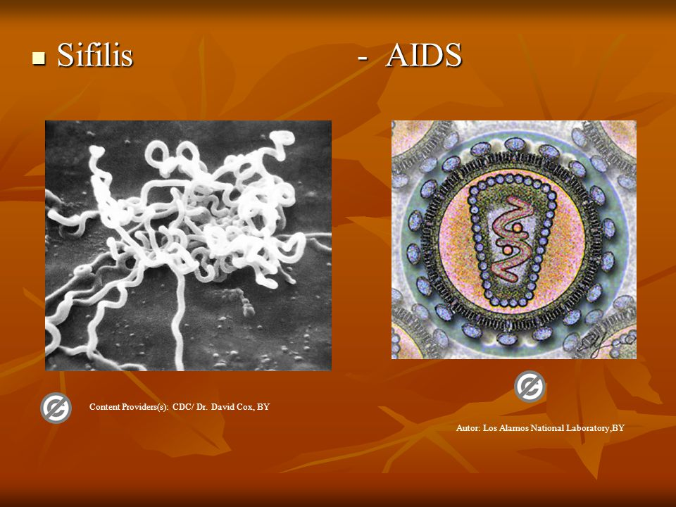 Sifilis - AIDS Sifilis - AIDS Autor: Los Alamos National Laboratory,BY Content Providers(s): CDC/ Dr.