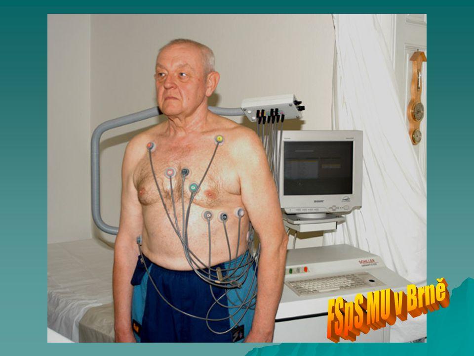  Valsalvův manévr Kombinovaná zátěž při Valsalvově manévru nachází výraznou kardiovaskulární odezvu.