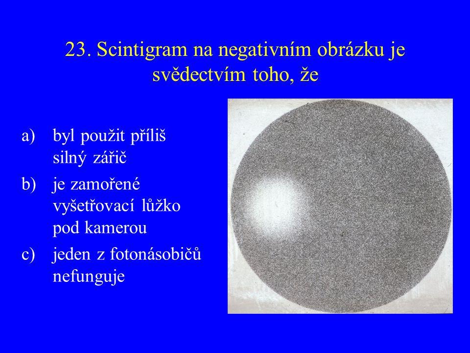 23. Scintigram na negativním obrázku je svědectvím toho, že a)byl použit příliš silný zářič b)je zamořené vyšetřovací lůžko pod kamerou c)jeden z foto