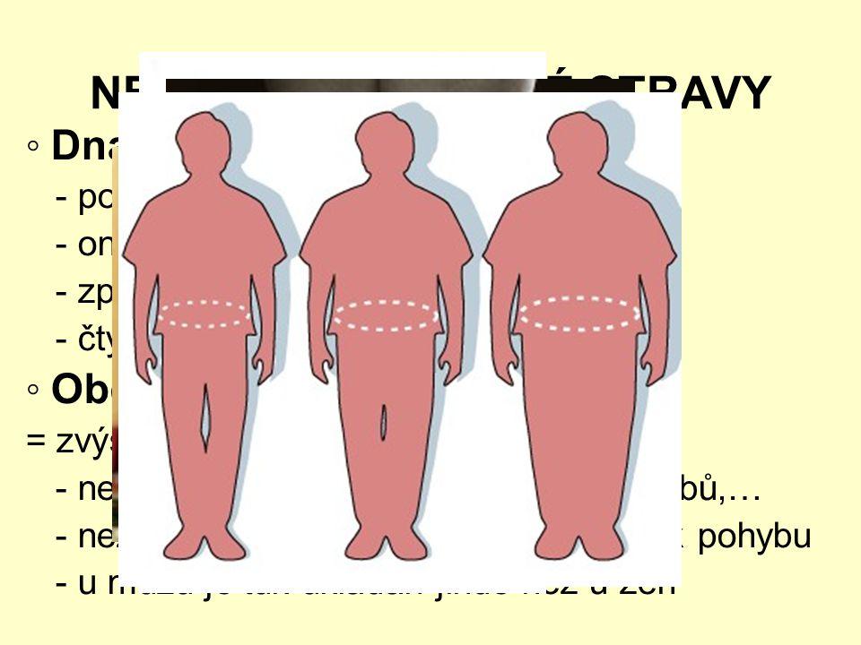 NEMOCI Z NEZDRAVÉ STRAVY ◦ Dna - poškození funkce kloubů - onemocnění: cukrovka, nadváha,… - způsob: maso, alkohol, pitný režim - čtyři stádia ◦ Obezi