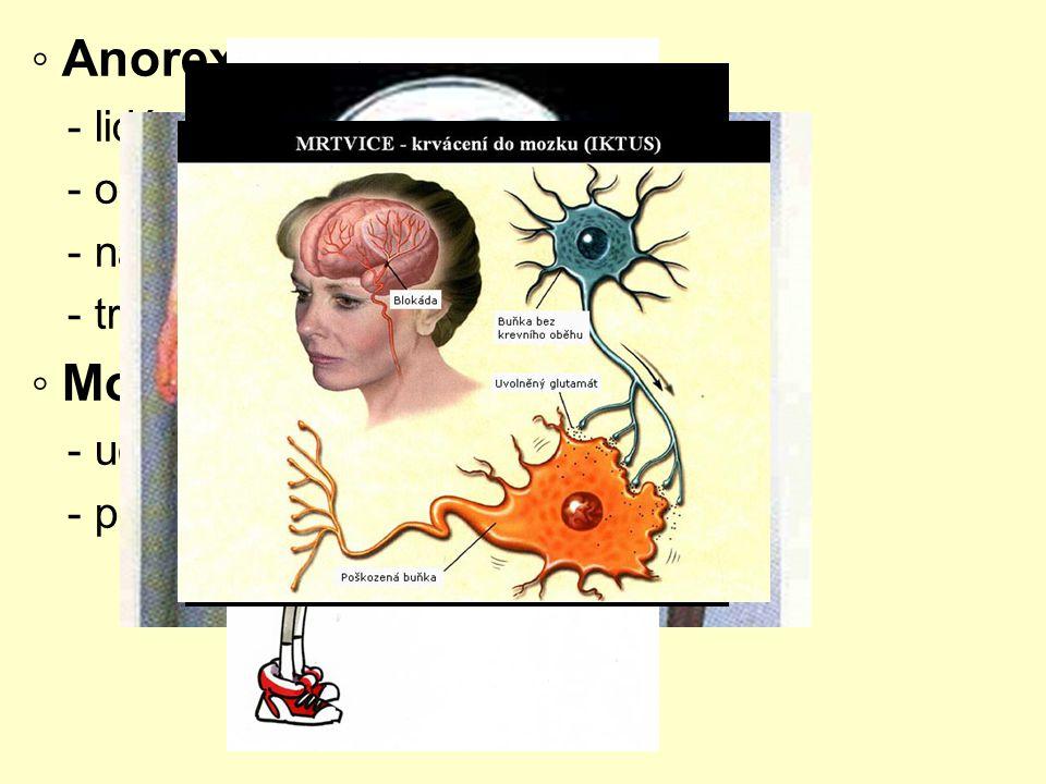 ◦ Salmonelóza - infekční onemocnění, způsobeno bakteriemi - přenos ze zvířete na člověka - postižení žaludku a střev ◦ Listerióza - způsobeno bakteriemi - nákaza ze syrových potravin,…