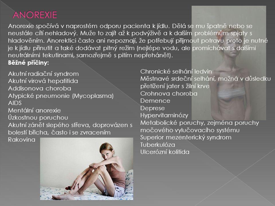 Anorexie spočívá v naprostém odporu pacienta k jídlu. Dělá se mu špatně nebo se neustále cítí nehladový. Muže to zajít až k podvýživě a k dalším probl