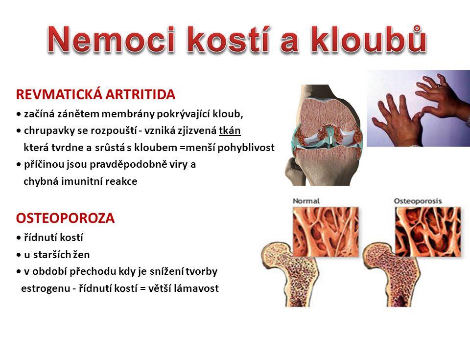 REVMATICKÁ ARTRITIDA začíná zánětem membrány pokrývající kloub, chrupavky se rozpouští - vzniká zjizvená tkán která tvrdne a srůstá s kloubem =menší pohyblivost příčinou jsou pravděpodobně viry a chybná imunitní reakce OSTEOPOROZA řídnutí kostí u starších žen v období přechodu kdy je snížení tvorby estrogenu - řídnutí kostí = větší lámavost