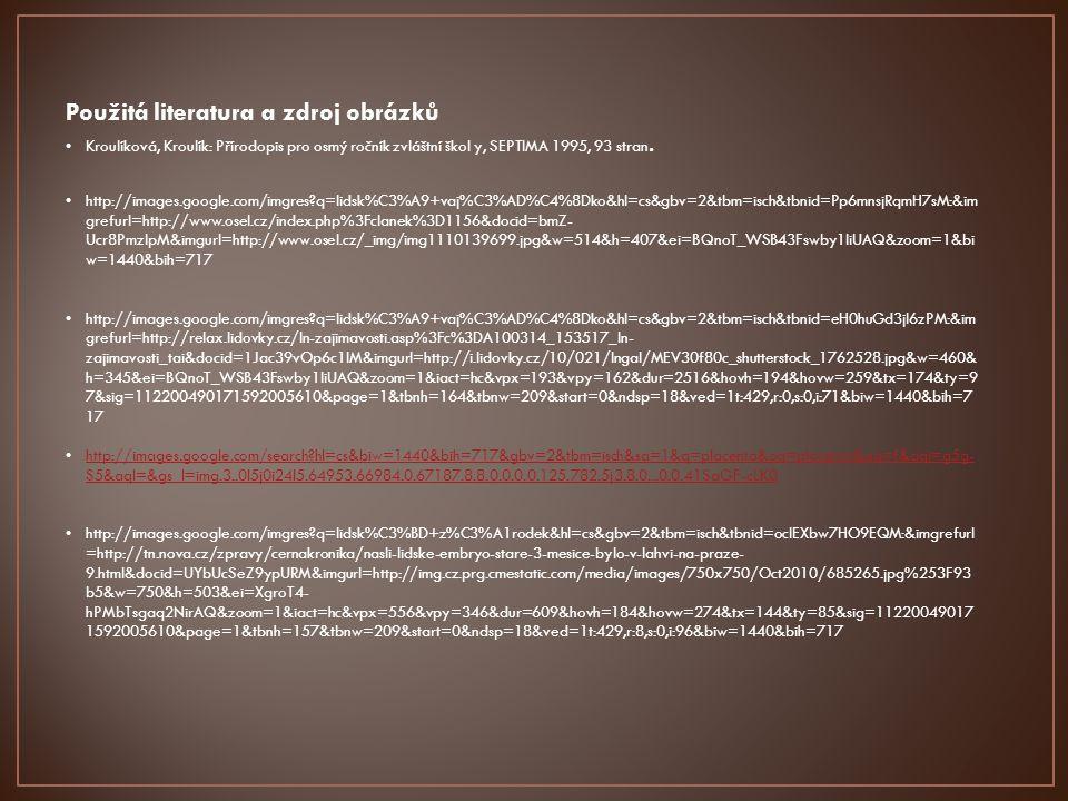 Použitá literatura a zdroj obrázků Kroulíková, Kroulík: Přírodopis pro osmý ročník zvláštní škol y, SEPTIMA 1995, 93 stran. http://images.google.com/i