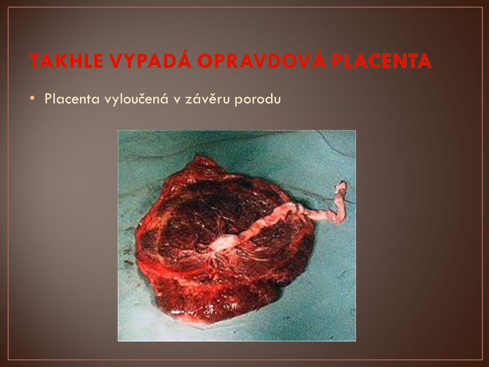 Placenta vyloučená v závěru porodu