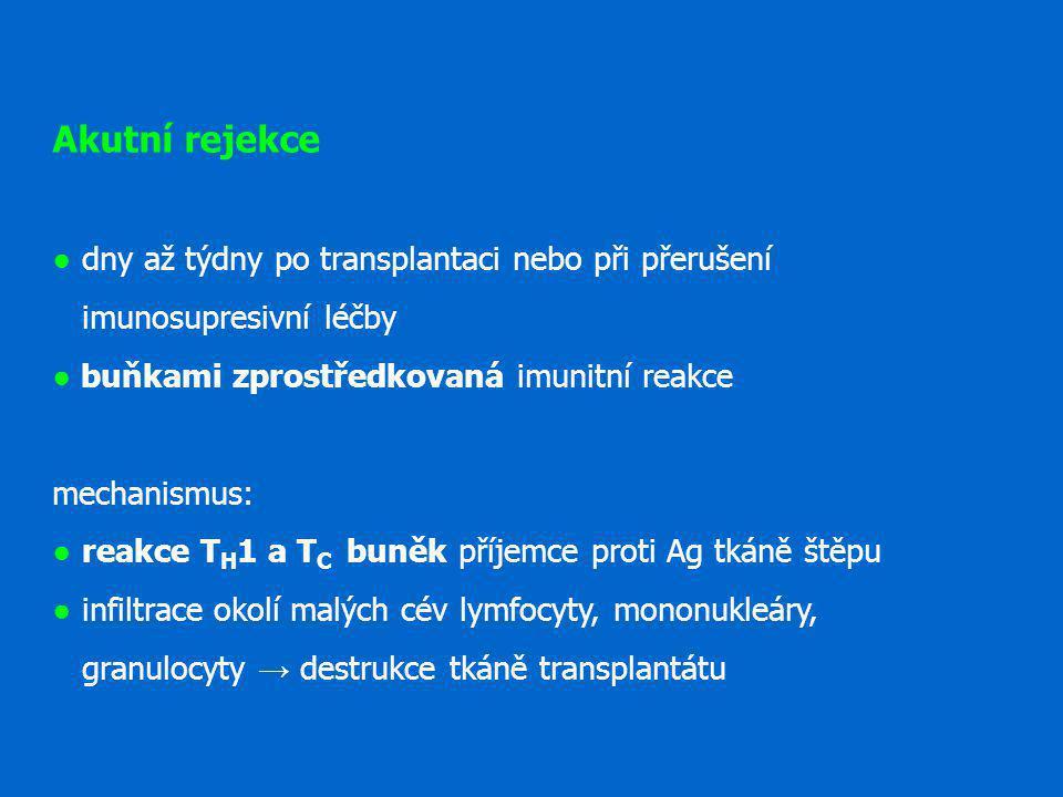 Akutní rejekce ● dny až týdny po transplantaci nebo při přerušení imunosupresivní léčby ● buňkami zprostředkovaná imunitní reakce mechanismus: ● reakc