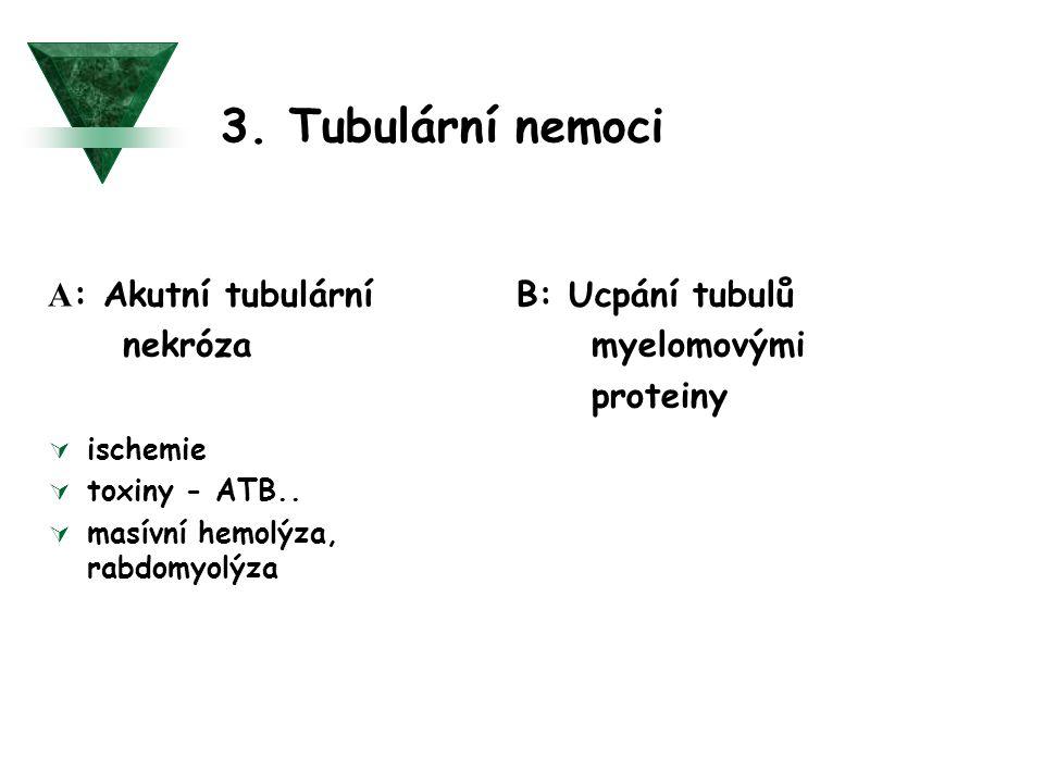 3. Tubulární nemoci A : Akutní tubulární nekróza  ischemie  toxiny - ATB..  masívní hemolýza, rabdomyolýza B: Ucpání tubulů myelomovými proteiny