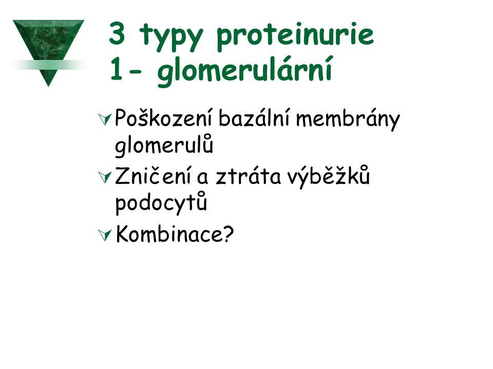 3 typy proteinurie 1- glomerulární  Poškození bazální membrány glomerulů  Zničení a ztráta výběžků podocytů  Kombinace?