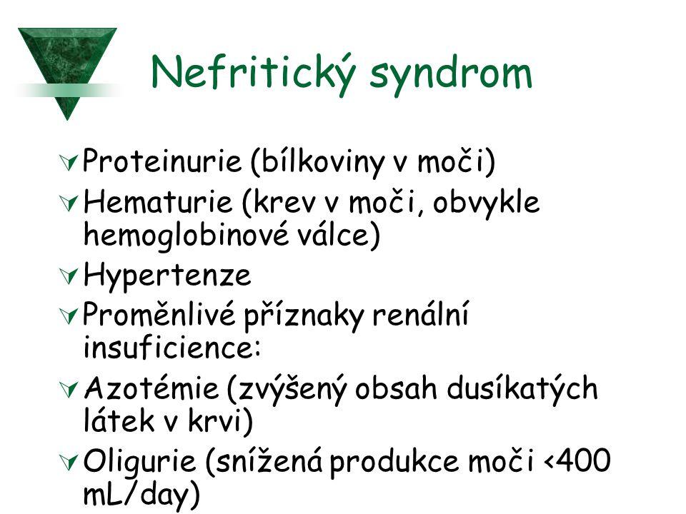 Nefritický syndrom  Proteinurie (bílkoviny v moči)  Hematurie (krev v moči, obvykle hemoglobinové válce)  Hypertenze  Proměnlivé příznaky renální