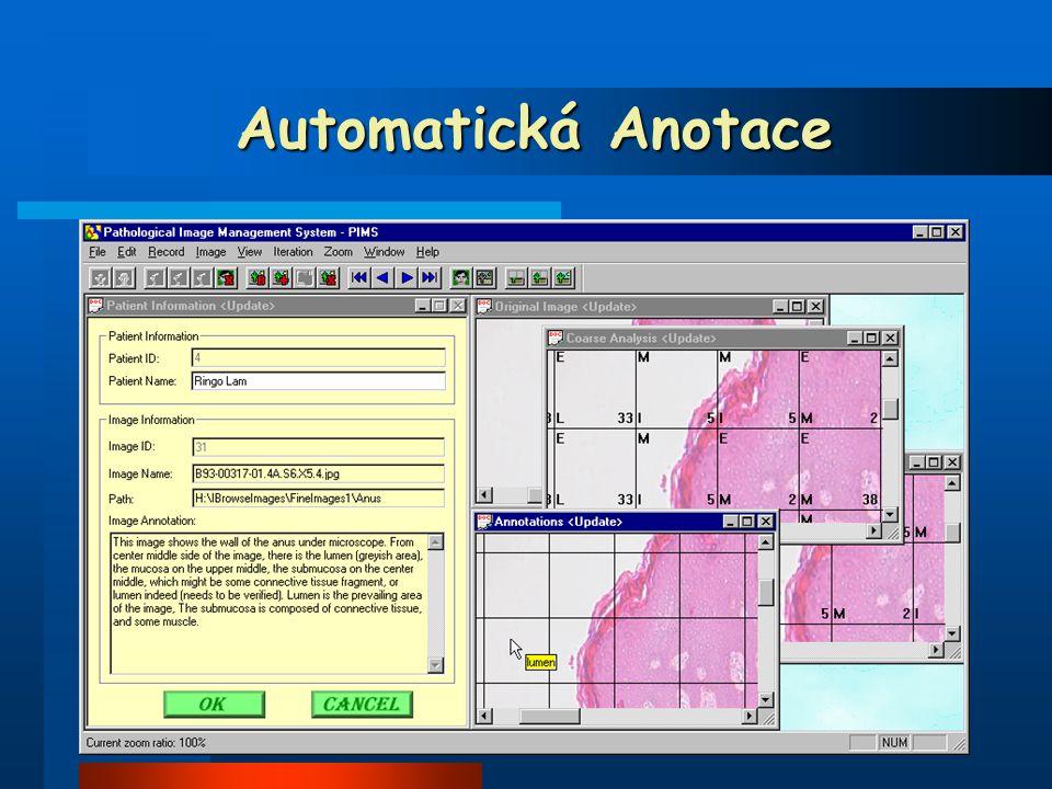 Automatická Anotace