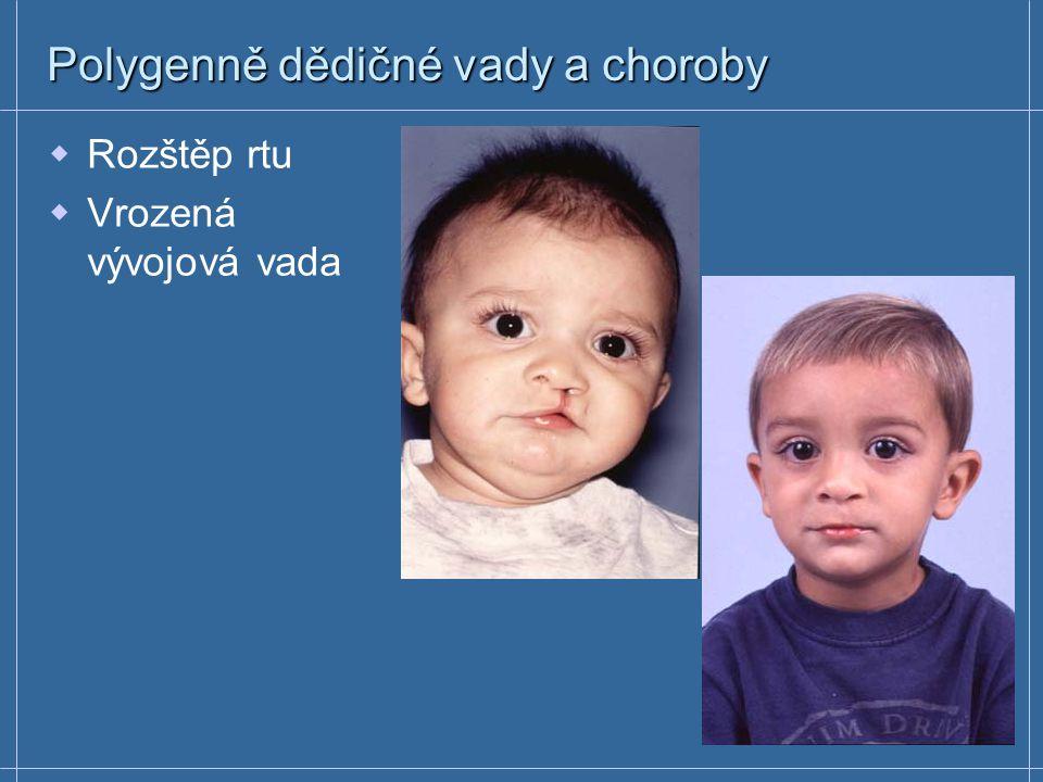  Rozštěp rtu  Vrozená vývojová vada Polygenně dědičné vady a choroby