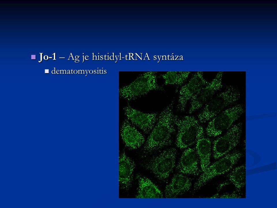 Jo-1 – Ag je histidyl-tRNA syntáza Jo-1 – Ag je histidyl-tRNA syntáza dematomyositis dematomyositis