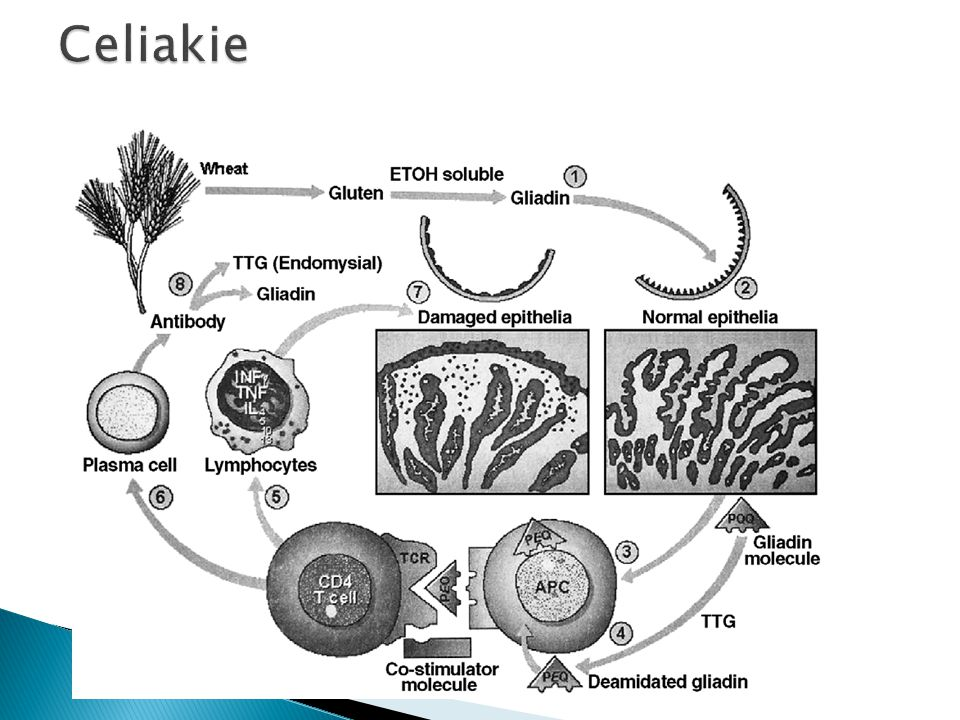 Chemistry Normal Values Urinalysis Sodium 133 136-146 mmol/L pH 6.0 Specific gravity 1.010 Protein 1+ Glucose negative Acetone negative Occult blood negative Bile negative Waxy casts Potassium 6.2 3.5-5.3 mmol/L Chloride 100 98-108 mmol/L Total CO 2 15 23-27 mmol/L BUN 170 7-22 mg/dl Creatinine 16.0 0.7-1.5 mg/dl Glucose 108 70-110 mg/dl Calcium 7.2 8.9-10.3 mg/dl Phosphorus 10.5 2.6-6.4 mg/dl Alkaline Phosphatase 306 30-110 IU/L Parathyroid Hormone 895 10-65 pg/ml Hemoglobin 8.6 14-17 gm/dl Hematocrit 27.4 40-54 % Mean cell volume 88 85-95 FL Muž, 41 let, dlouhodobě léčen s hypertenzí a diabetem.