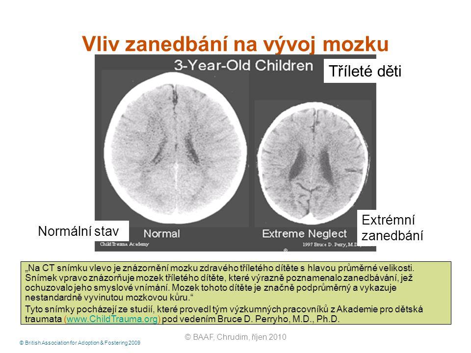 """© British Association for Adoption & Fostering 2009 Vliv zanedbání na vývoj mozku """"Na CT snímku vlevo je znázornění mozku zdravého tříletého dítěte s"""