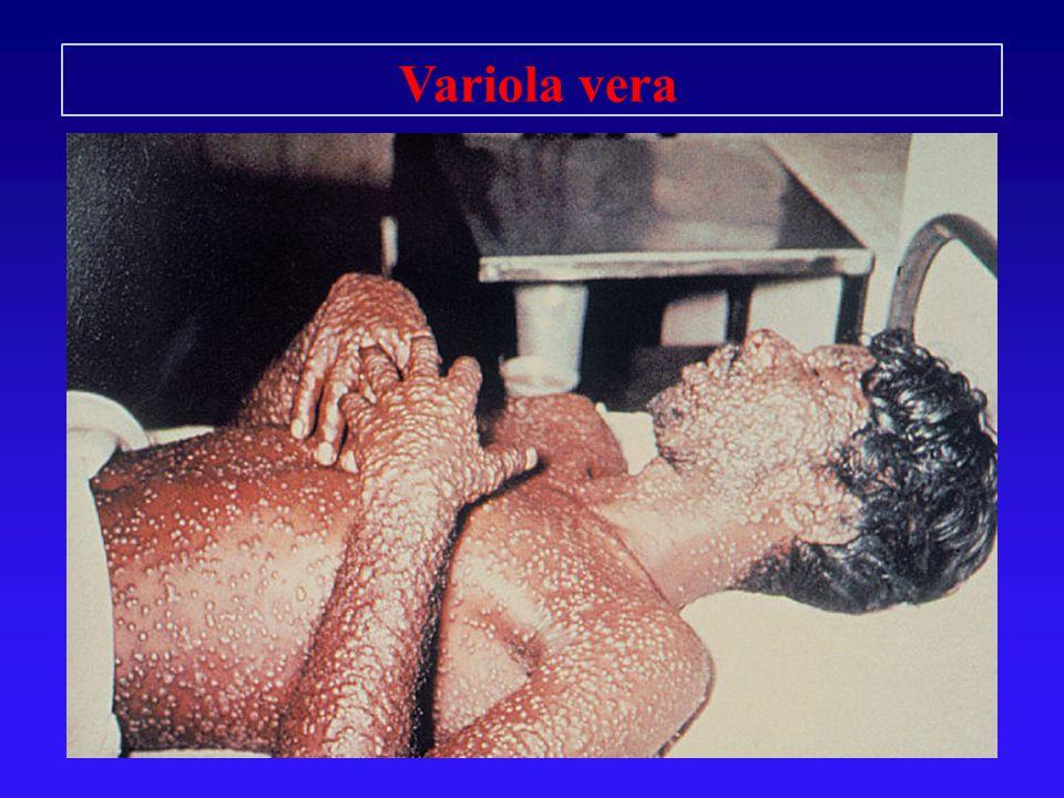 Variola vera