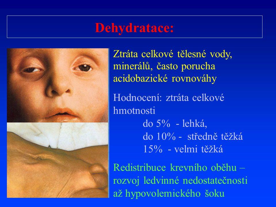 Dehydratace: Ztráta celkové tělesné vody, minerálů, často porucha acidobazické rovnováhy Hodnocení: ztráta celkové hmotnosti do 5% - lehká, do 10% - s