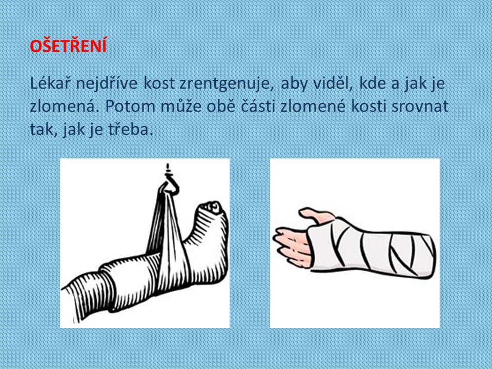 OŠETŘENÍ Lékař nejdříve kost zrentgenuje, aby viděl, kde a jak je zlomená.