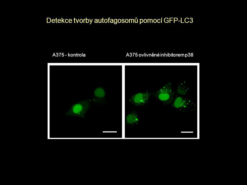 A375 - kontrola A375 ovlivněné inhibitorem p38 Detekce tvorby autofagosomů pomocí GFP-LC3