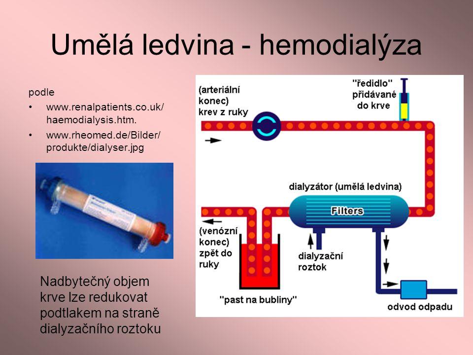 Umělá ledvina - hemodialýza podle www.renalpatients.co.uk/ haemodialysis.htm. www.rheomed.de/Bilder/ produkte/dialyser.jpg Nadbytečný objem krve lze r