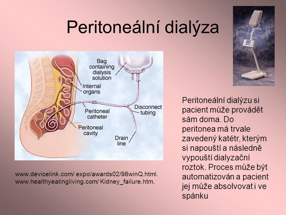 Peritoneální dialýza www.devicelink.com/ expo/awards02/98winQ.html. www.healthyeatingliving.com/ Kidney_failure.htm. Peritoneální dialýzu si pacient m