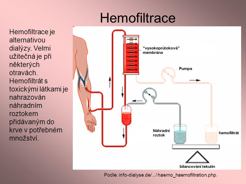 Hemofiltrace Podle: info-dialyse.de/.../ haemo_haemofiltration.php. Hemofiltrace je alternativou dialýzy. Velmi užitečná je při některých otravách. He