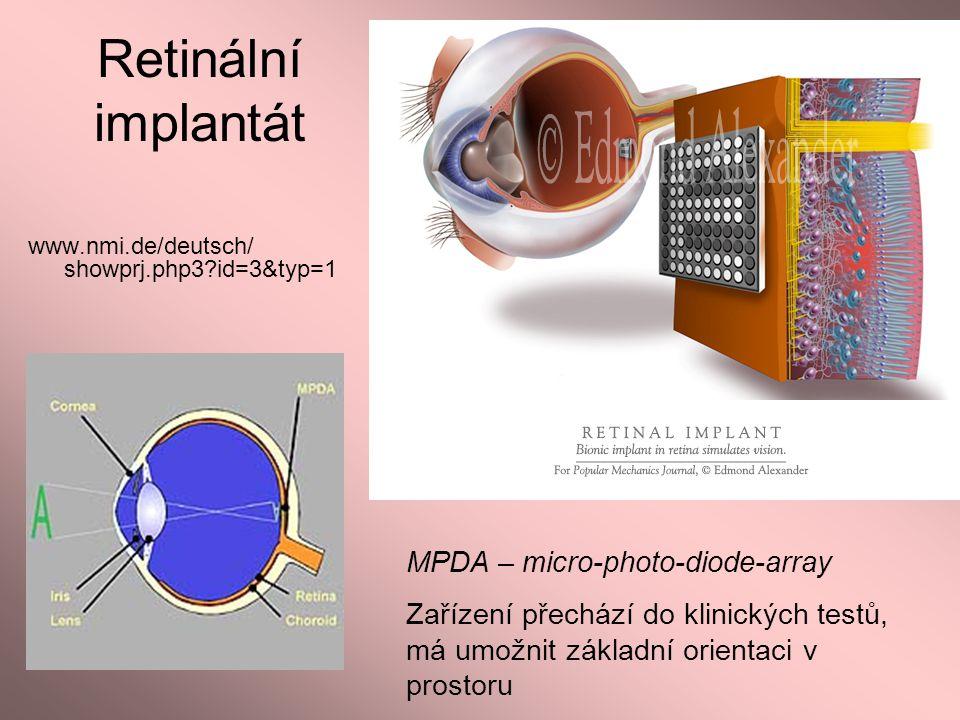 Retinální implantát www.nmi.de/deutsch/ showprj.php3?id=3&typ=1 MPDA – micro-photo-diode-array Zařízení přechází do klinických testů, má umožnit zákla