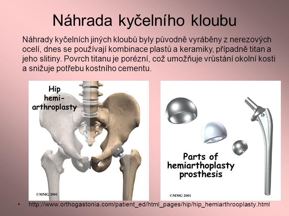 Náhrada kyčelního kloubu http://www.orthogastonia.com/patient_ed/html_pages/hip/hip_hemiarthrooplasty.html Náhrady kyčelních jiných kloubů byly původn