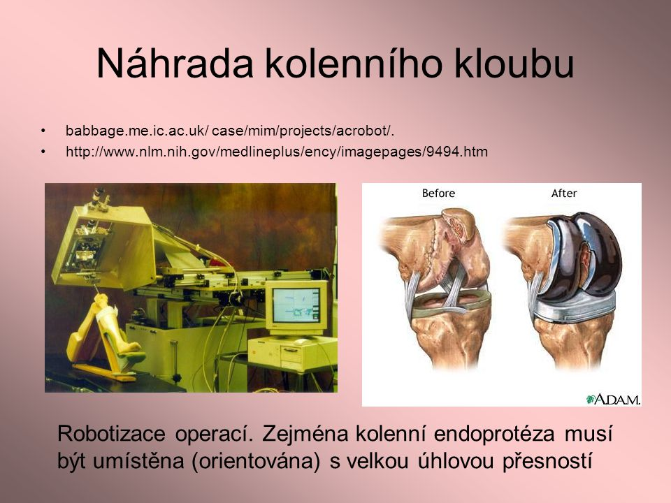 Náhrada kolenního kloubu babbage.me.ic.ac.uk/ case/mim/projects/acrobot/. http://www.nlm.nih.gov/medlineplus/ency/imagepages/9494.htm Robotizace opera
