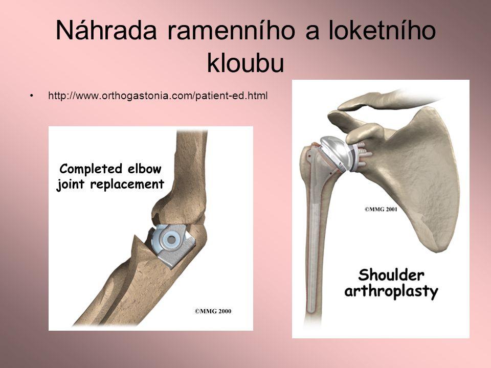 Náhrada ramenního a loketního kloubu http://www.orthogastonia.com/patient-ed.html