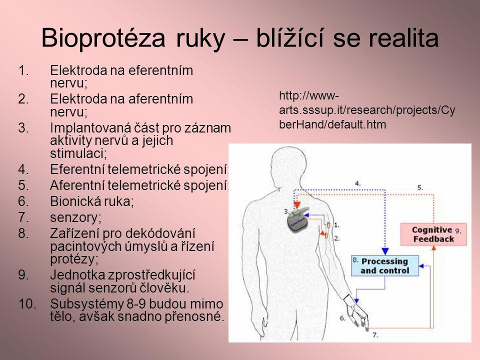 Bioprotéza ruky – blížící se realita 1.Elektroda na eferentním nervu; 2.Elektroda na aferentním nervu; 3.Implantovaná část pro záznam aktivity nervů a