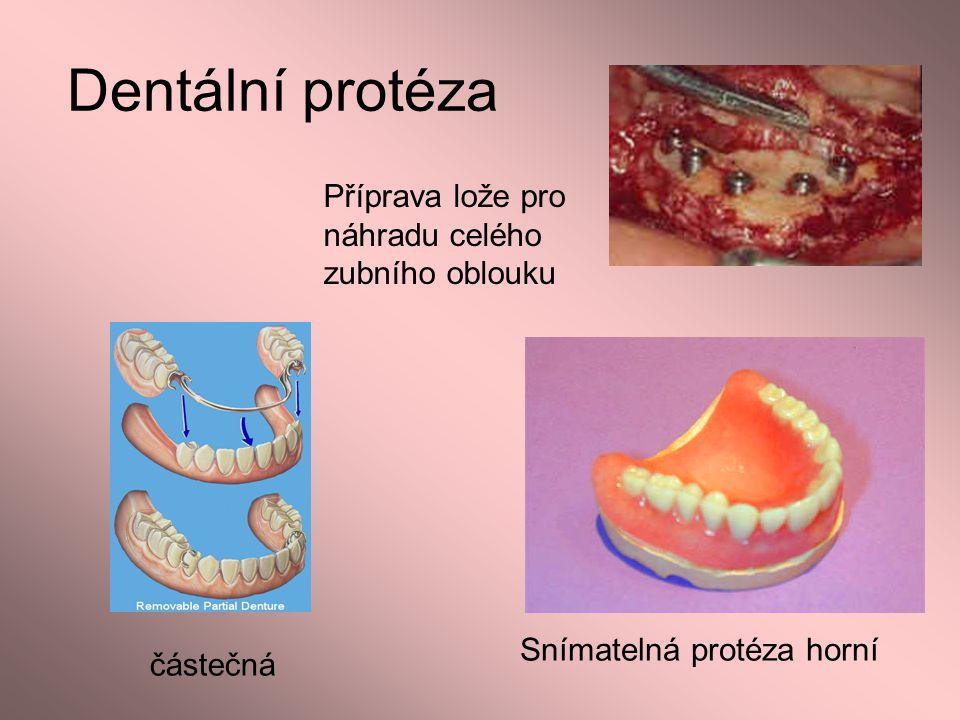 Dentální protéza Snímatelná protéza horní částečná Příprava lože pro náhradu celého zubního oblouku