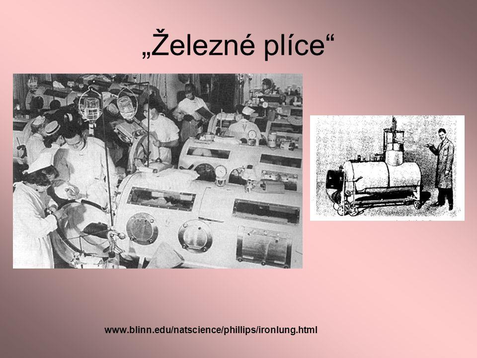 """""""Železné plíce"""" www.blinn.edu/natscience/phillips/ironlung.html"""