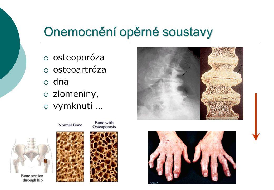Onemocnění opěrné soustavy  osteoporóza  osteoartróza  dna  zlomeniny,  vymknutí …